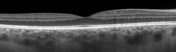 A normal Optical coherence tomography